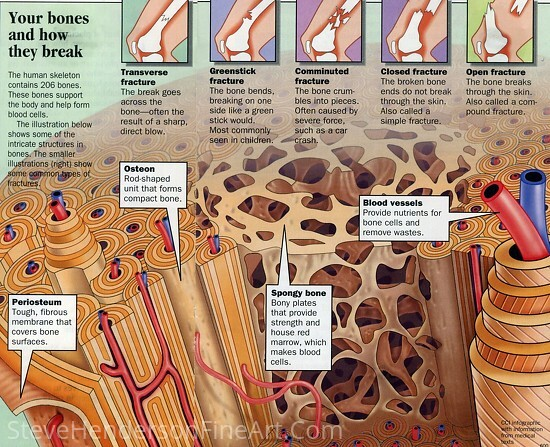 Osteoperosis by Steve Henderson  ~  x